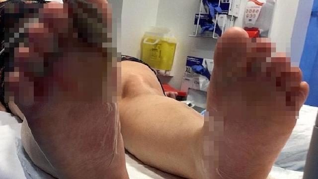 澳大利亚美女裸足踩沙滩 烫到脚底全脱皮