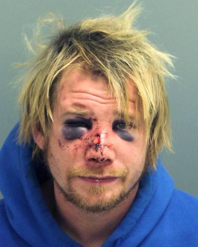 男子潜入前女友家遭暴打 双眼瘀青惨变熊猫